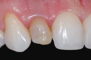 dentes anteriores escurecidos